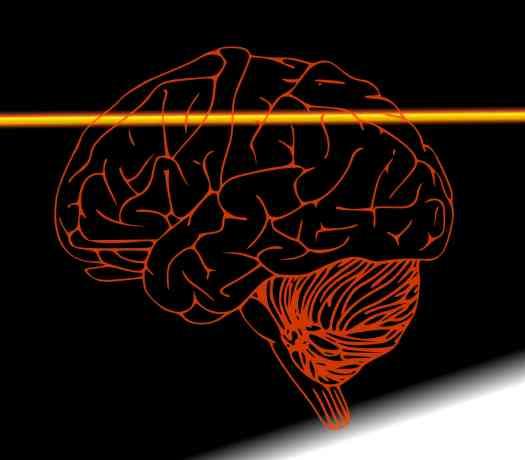 Brain(LR)